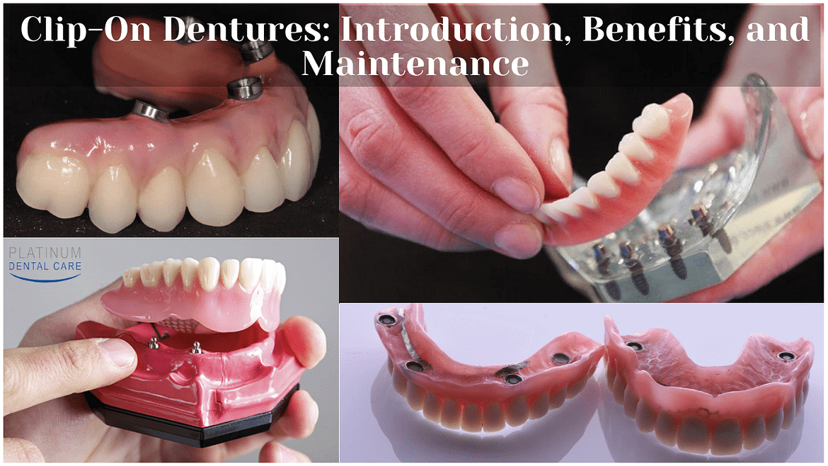 Clip-On Dentures: Introduction, Benefits, and Maintenance