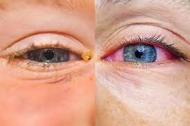 Seasonal eye allergies – Wear eyeglasses and stay classy